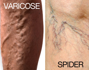 Know Who Is At Risk For Varicose Veins